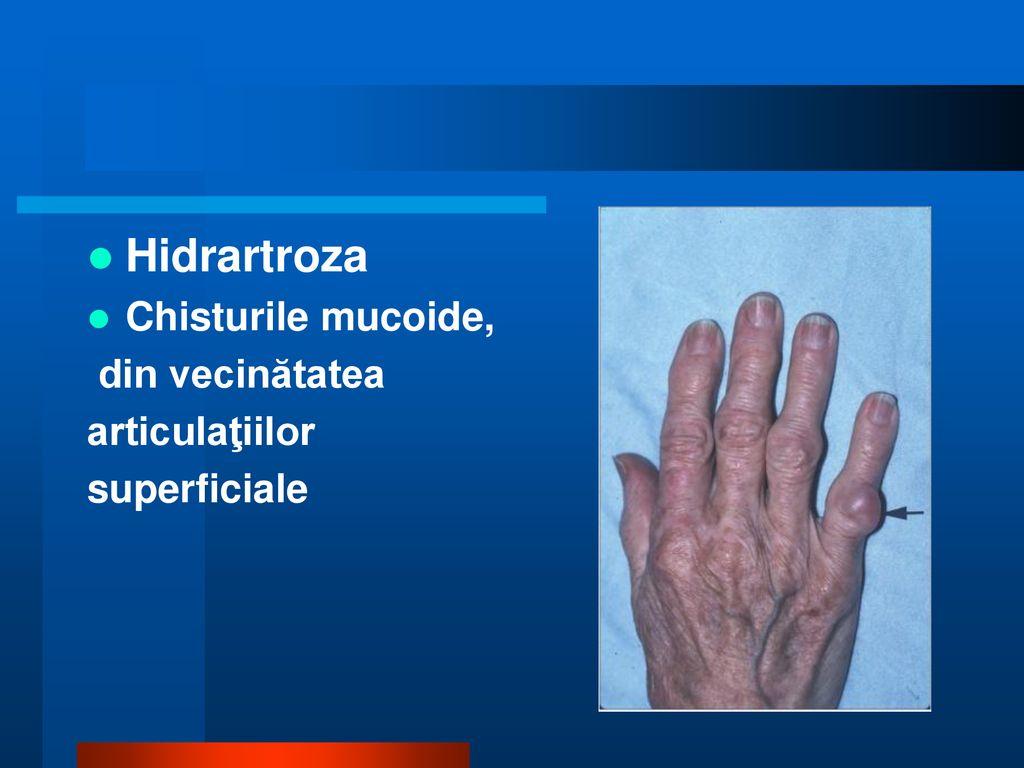 artroza articulației șoldului tratament de 1 grad artrita cronica a soldului