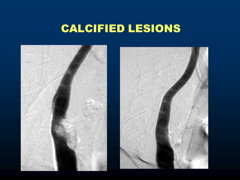 CALCIFIED LESIONS