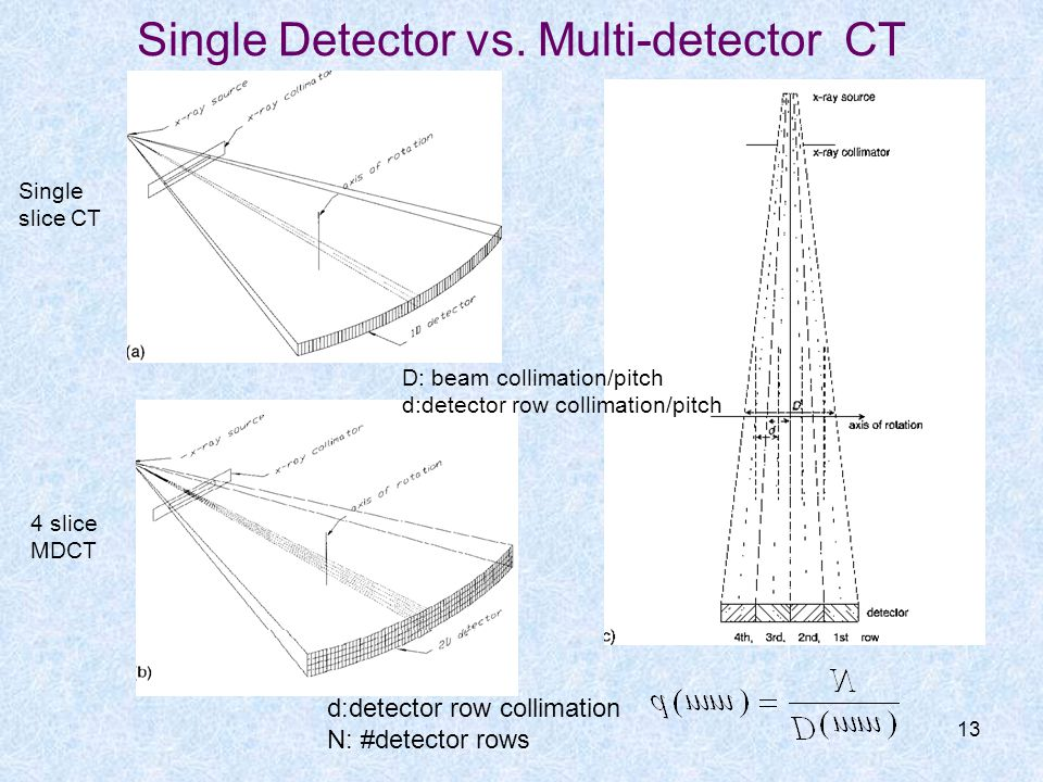 Single Detector vs. Multi-detector CT