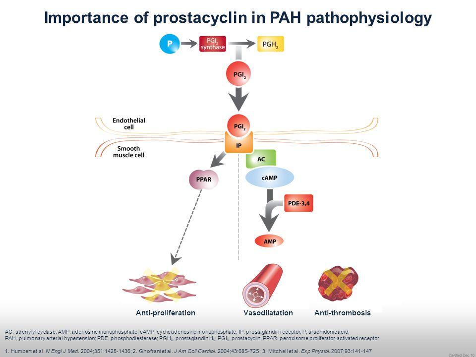 Importance of prostacyclin in PAH pathophysiology