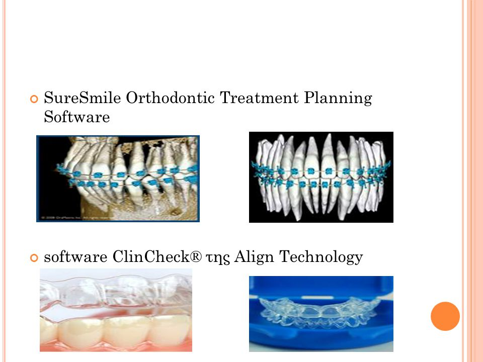 SureSmile Orthodontic Treatment Planning Software