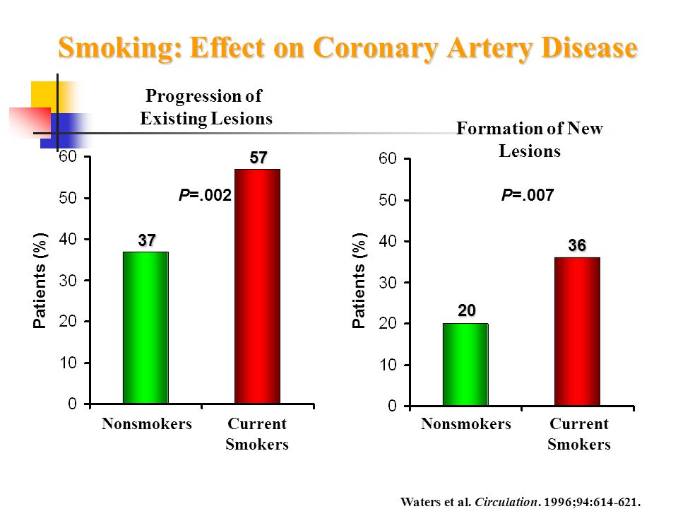 Smoking: Effect on Coronary Artery Disease