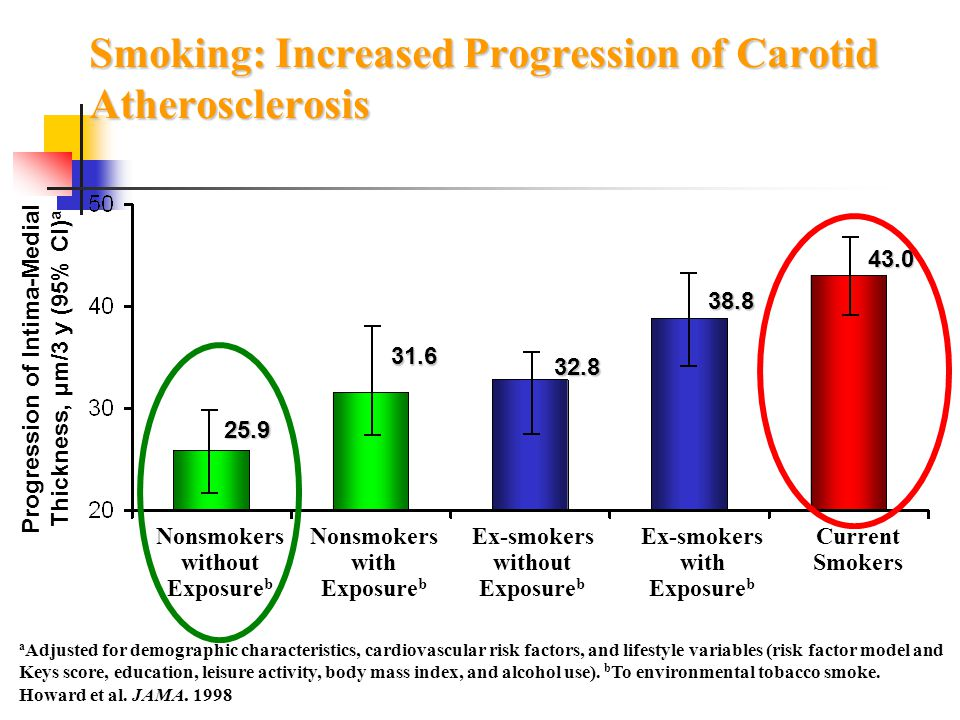 Smoking: Increased Progression of Carotid Atherosclerosis