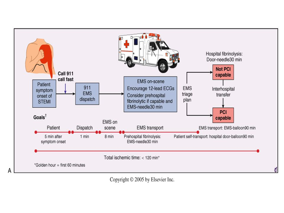 Options for transportation of STEMI patients and initial reperfusion treatment.