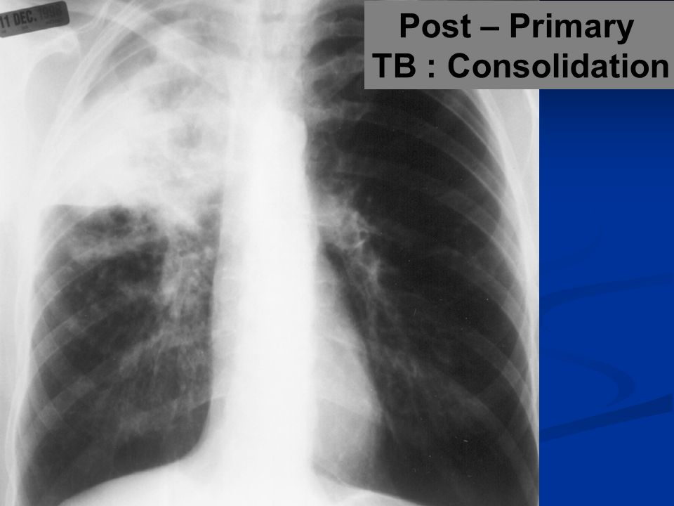 Post – Primary TB : Consolidation