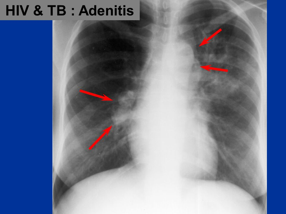 HIV & TB : Adenitis Interim Caribbean Guidelines for the Prevention, Treatment, Care, and Control of Tuberculosis.