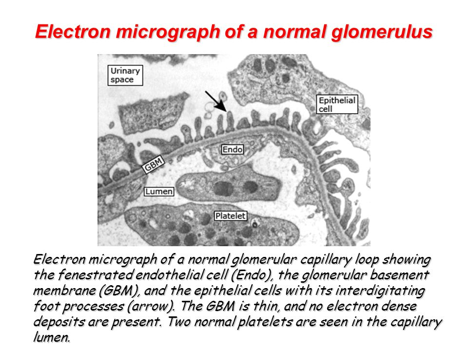 Electron micrograph of a normal glomerulus