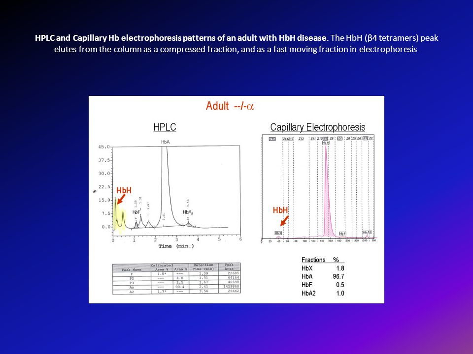 HPLC and Capillary Hb electrophoresis patterns of an adult with HbH disease.