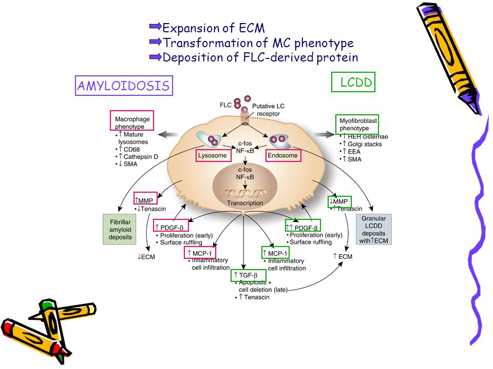 Expansion of ECM Transformation of MC phenotype Deposition of FLC-derived protein LCDD AMYLOIDOSIS