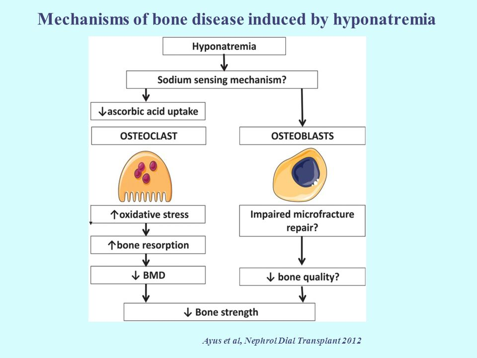 Mechanisms of bone disease induced by hyponatremia