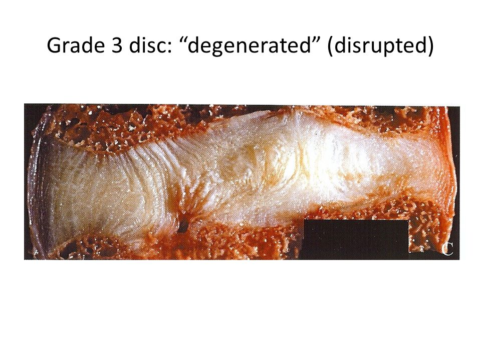 Grade 3 disc: degenerated (disrupted)