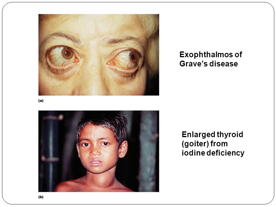 Exophthalmos of Grave's disease