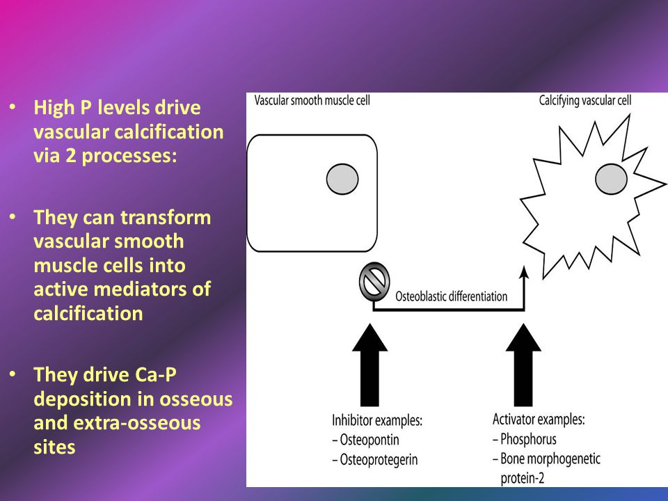 High P levels drive vascular calcification via 2 processes: