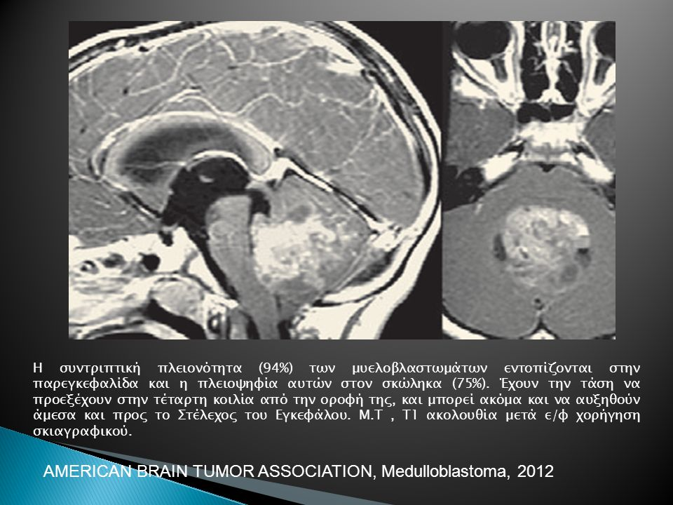 AMERICAN BRAIN TUMOR ASSOCIATION, Medulloblastoma, 2012