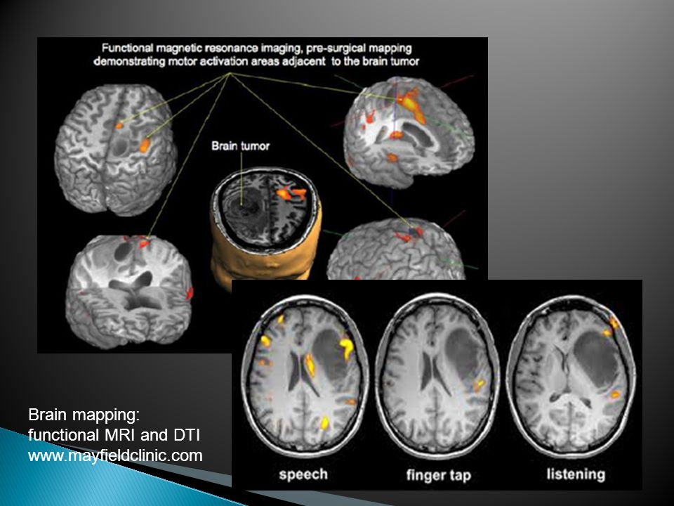 Brain mapping: functional MRI and DTI